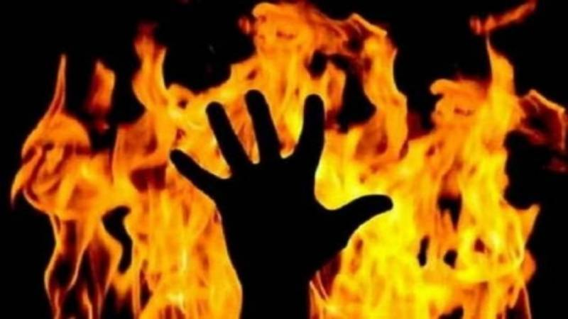 Minor girl in UP's Ballia set on fire by a jilted lover | True Scoop