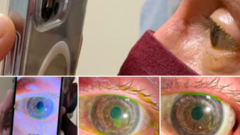 Doctor uses iPhone 13 Pro's Macro camera to check patients' eyes